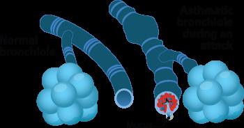 Asthma Tubes